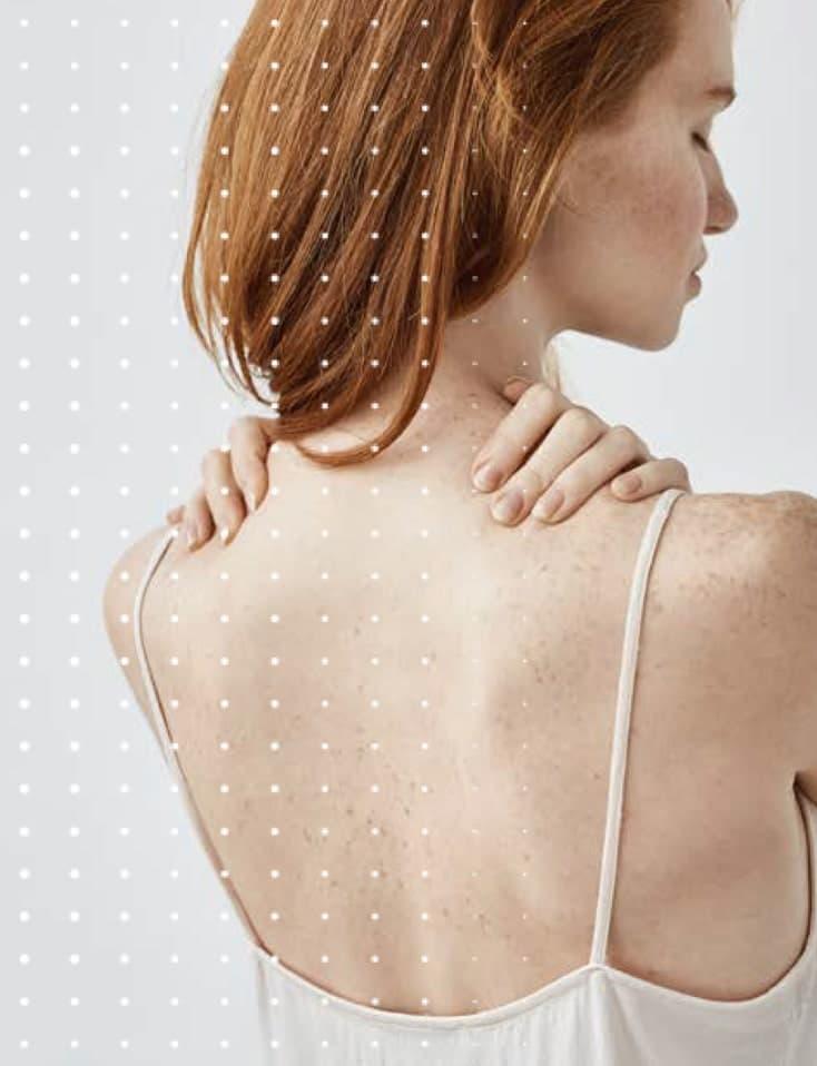 Haut und Sommersprossen - Clinique DELC