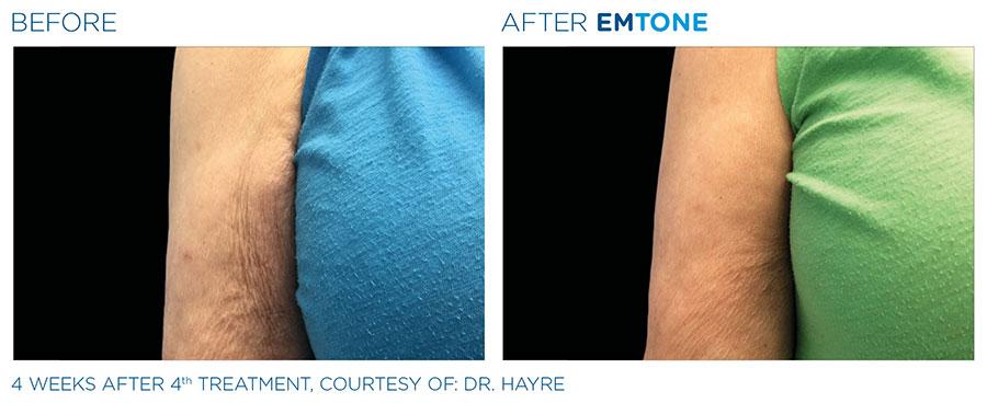 emtone-cellulite-vorher-nachher-08-arm
