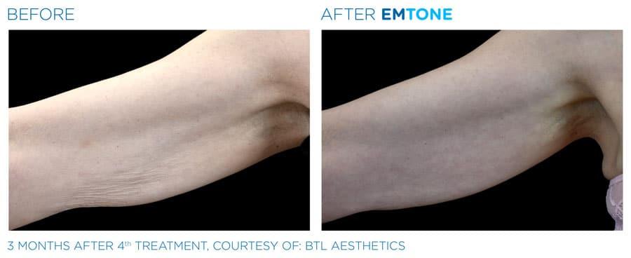 emtone-cellulite-vorher-nachher-arm